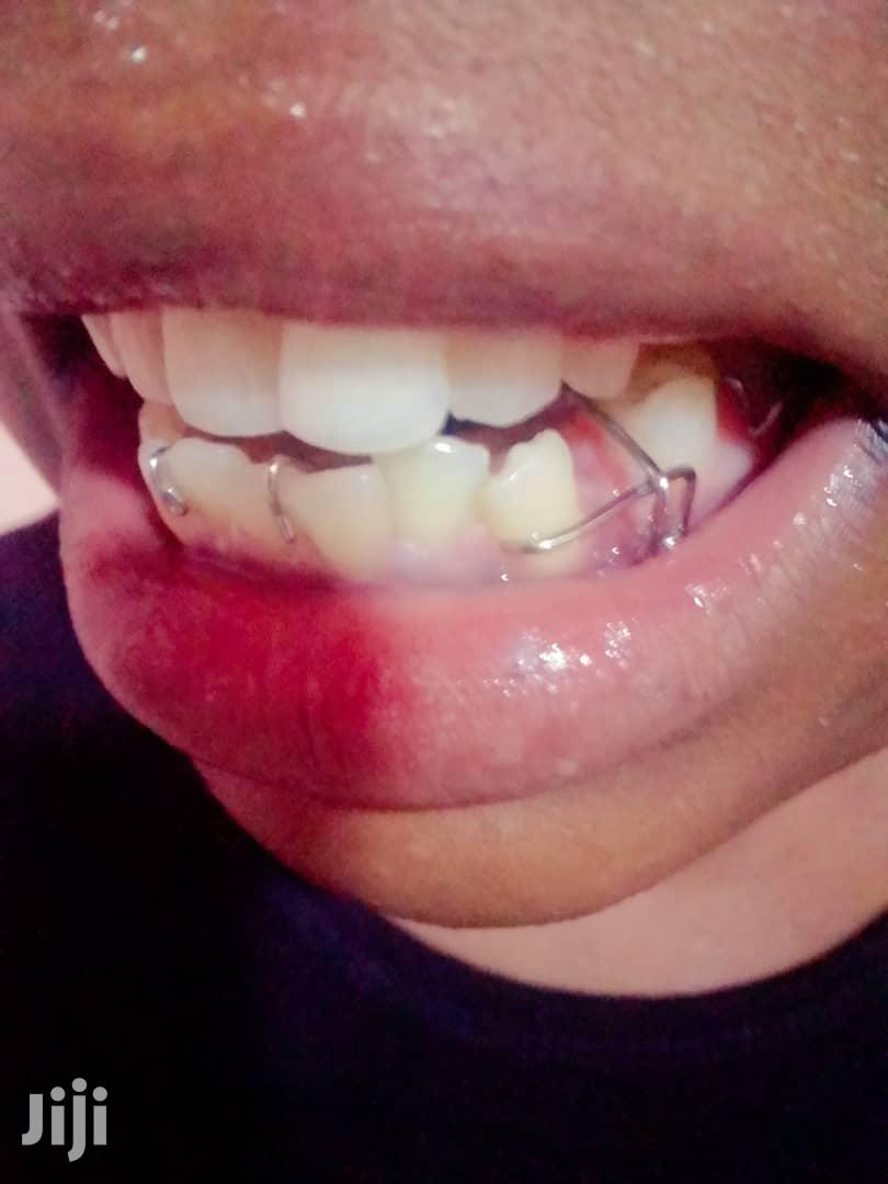Artificial Teeth And Braces   Health & Beauty Services for sale in Wakiso, Central Region, Uganda
