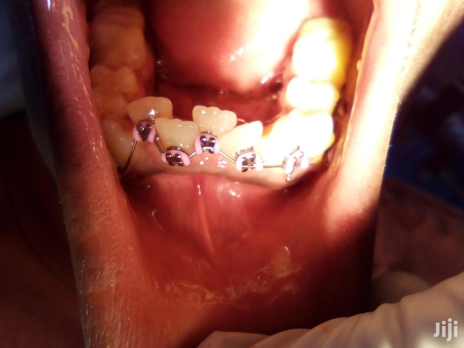 Artificial Teeth And Braces