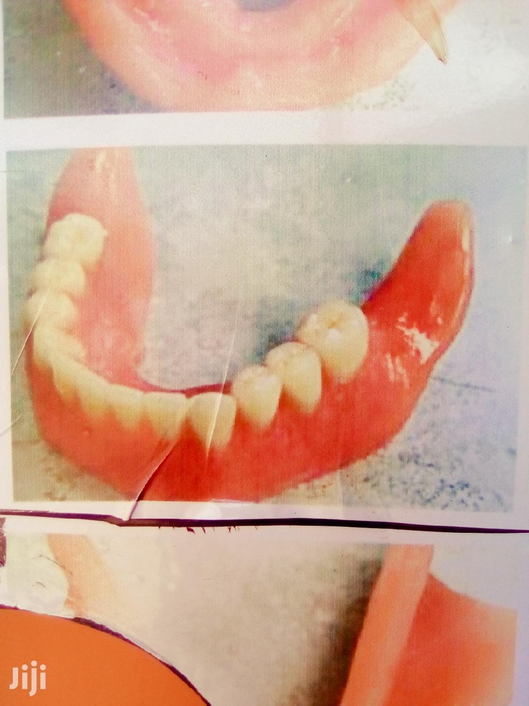 Artificial Teeth   Health & Beauty Services for sale in Wakiso, Central Region, Uganda