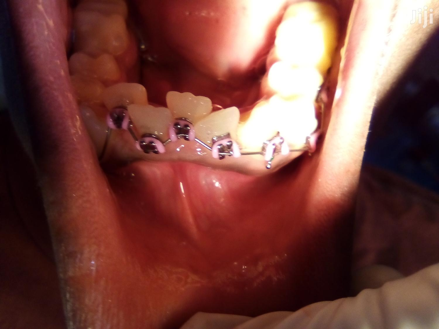 Teeth Re-position/Re-organisation | Health & Beauty Services for sale in Wakiso, Central Region, Uganda