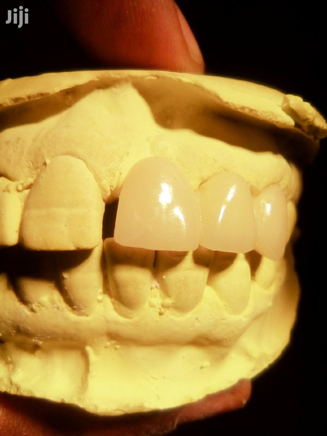Diastema(Akaziigo)-central Space Between The Two Front Teeth | Health & Beauty Services for sale in Wakiso, Central Region, Uganda