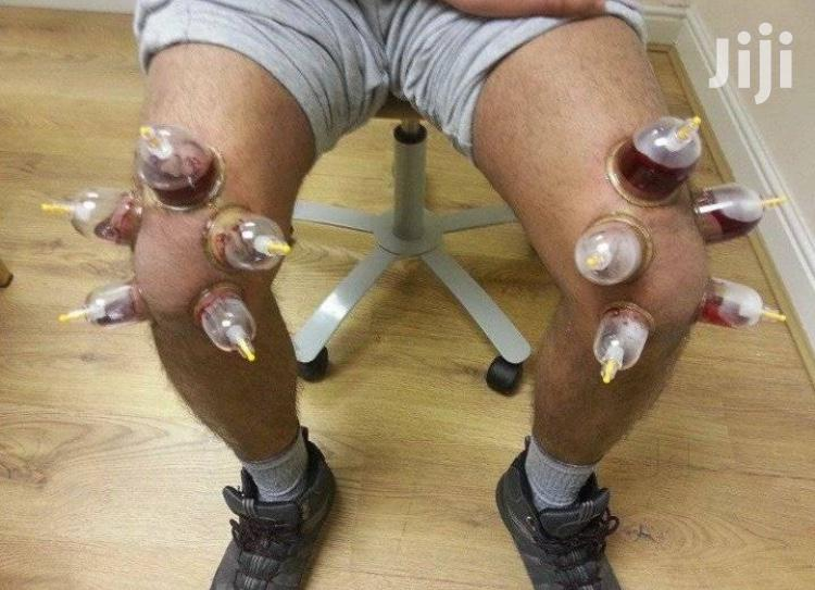 Hijama Wet Cupping | Tools & Accessories for sale in Kampala, Central Region, Uganda